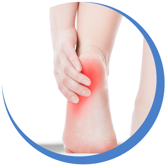 Plantar Fasciitis Treatments