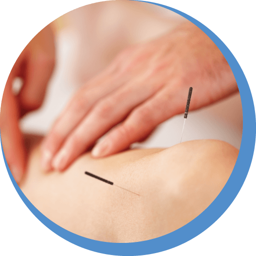 Acupuncture Treatment In Ashford